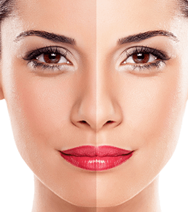 Skin Exfloiation