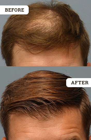 Best Hair Regrowth Treatment