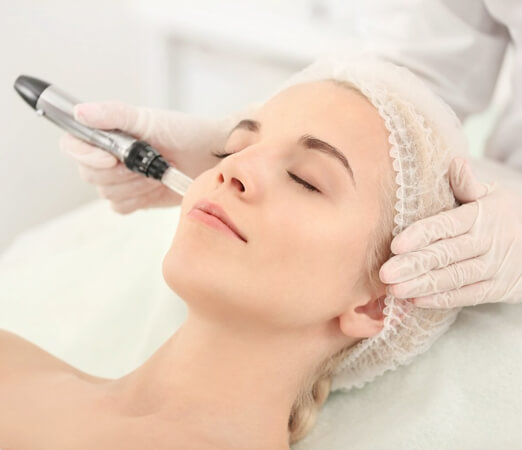 Best Micro Needling Treatment in Hyderbad