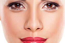 Mesotherapy Services for Face